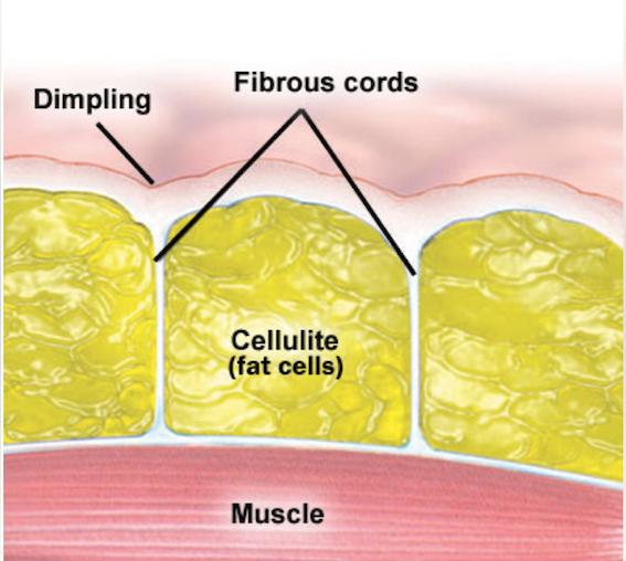 celulita tratament